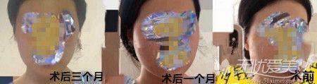 下颌角手术恢复过程