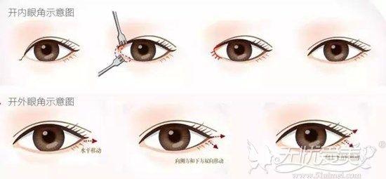开内、外眼角手术过程