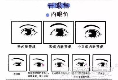开内眼角手术过程图