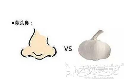 蒜头鼻的改善方法