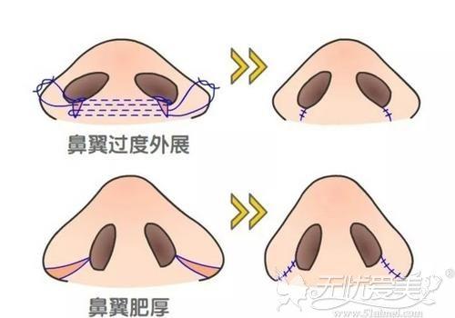 鼻翼缩小的手术原理
