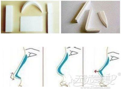 膨体形状和膨体隆鼻手术效果的图片