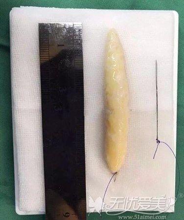 医生加工过的皮瓣组织