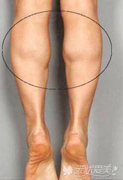 肌肉型小腿的判断方式