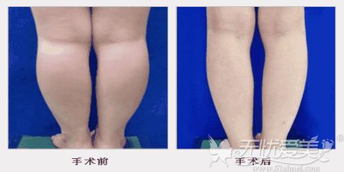 做小腿共振吸脂后的效果对比