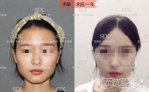 国字脸削骨一年案例