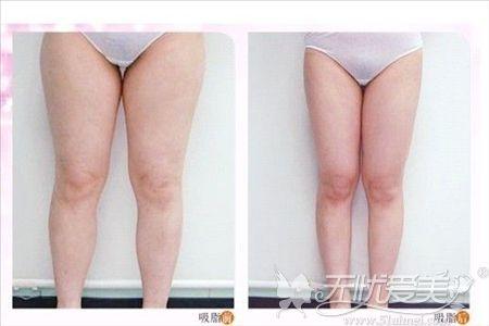淮北时光做大腿吸脂的优势