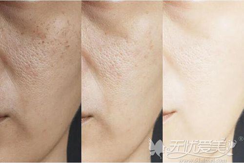 激光收缩毛孔的疗程变化