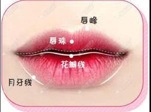 标准花瓣唇图片