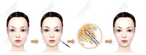 面部吸脂过程