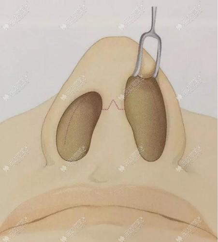 垫鼻梁手术切口怎么做