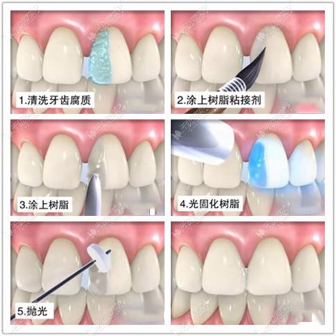 树脂补门牙缝的过程