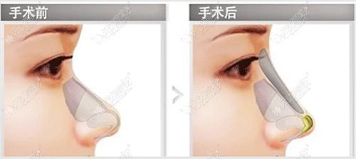 隆鼻用晶彩硅胶假体的效果