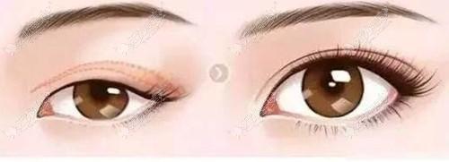 恢复后的双眼皮线条