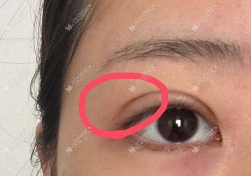 双眼皮术后眼尾过长