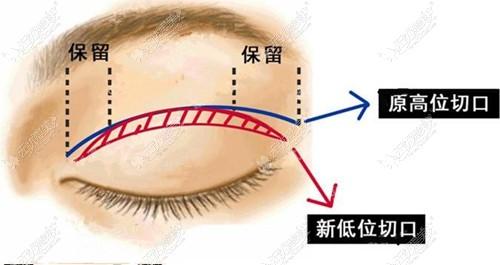 术后6个月眼尾过长修复方法