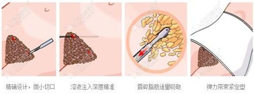 腰腹环吸手术过程