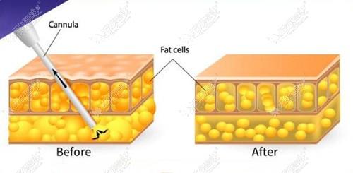 腰腹抽脂手术后脂肪细胞变化
