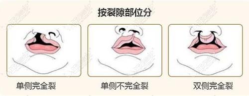 唇裂的分类