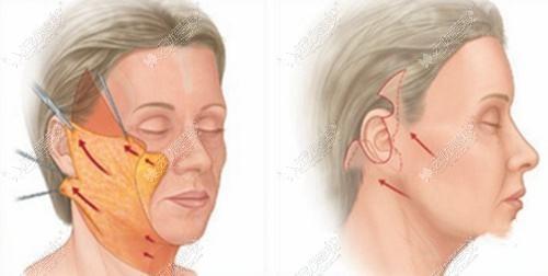 拉皮手术过程