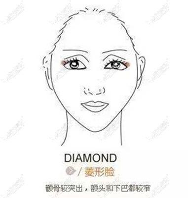 菱形脸做填充还是颧骨内推