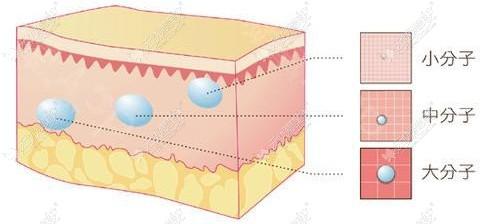 玻尿酸大中小分子注射的位置不同