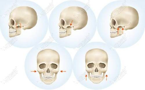 磨颧骨的手术过程