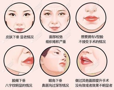 面部埋线提升可以改善的皱纹