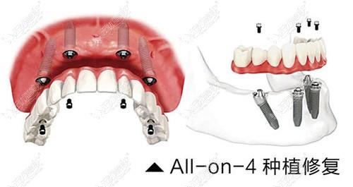 allon4种植牙