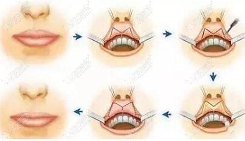 M唇手术的原理图