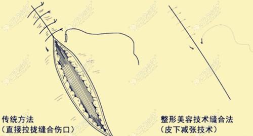 M唇手术的正确缝合方法