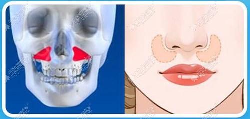 膨体填充鼻基底不满意可以取出吗