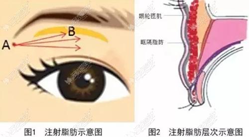 眼窝凹陷脂肪填充部位