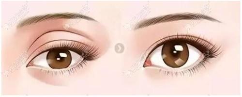 眼窝凹陷的区别