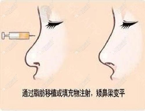 自体脂肪隆鼻后效果对比