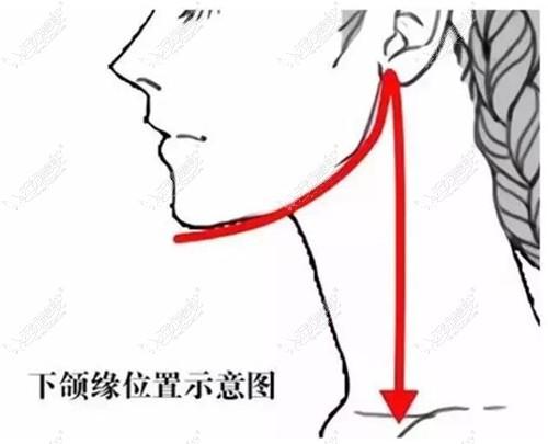 下颌缘吸脂部位