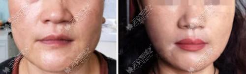 fds轻龄美面部提升的效果对比图