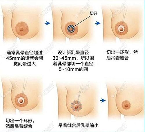 乳晕切口缩小过程