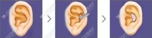 耳软骨隆鼻取软骨的部位