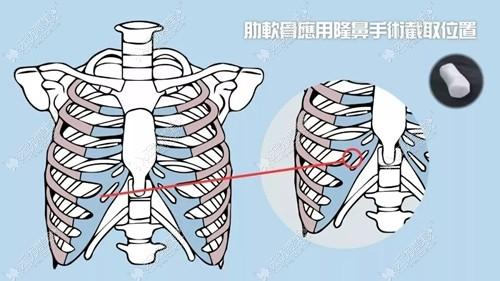 肋软骨隆鼻取肋骨的部分