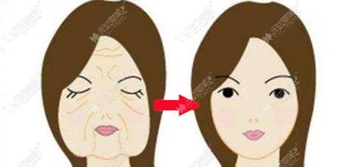 面部衰老如何做
