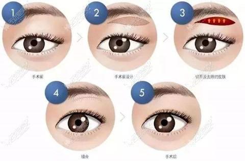 提眉手术过程