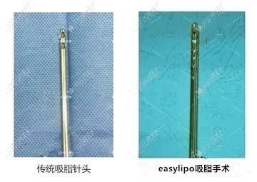 easylipo吸脂手术针头