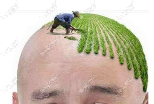 植发的手术方法