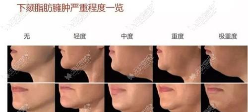 下颌缘的臃肿程度