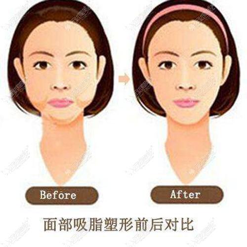 下颌缘吸脂的变化