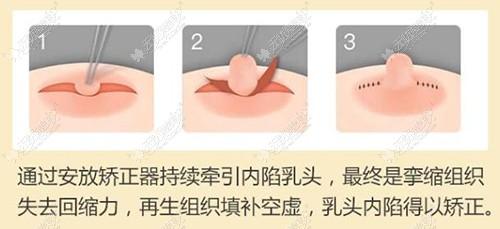 乳头内陷矫正方法