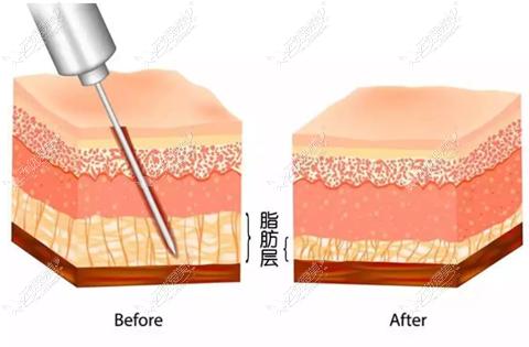 吸脂去除富贵包手术过程