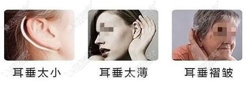 丰耳垂能解决的问题