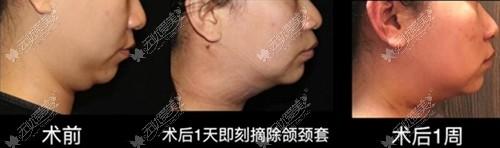 重庆时光5g天使光雕双下巴吸吸脂案例